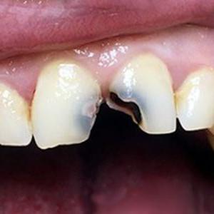 Кариозные передние зубы