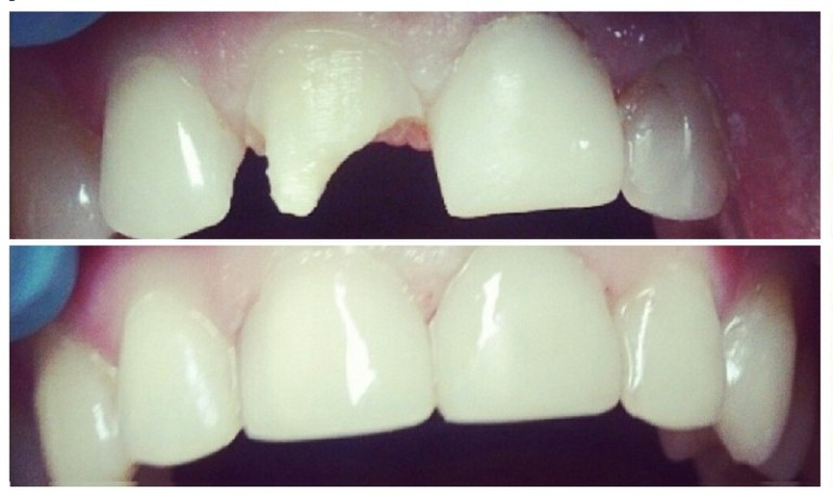 Пломба на передние зубы до и после