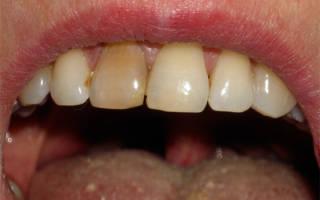 Потемневший зуб