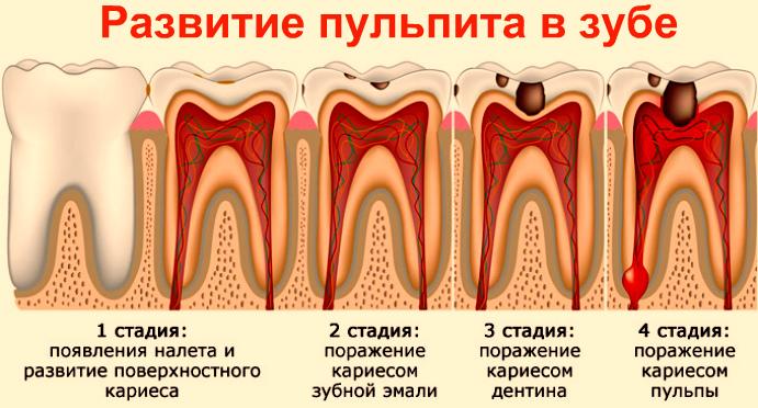 Развитие пульпита в зубе