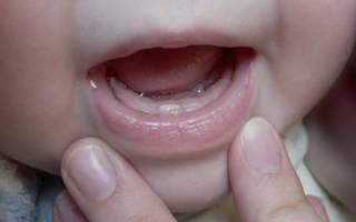 У ребенка режется первый зубик