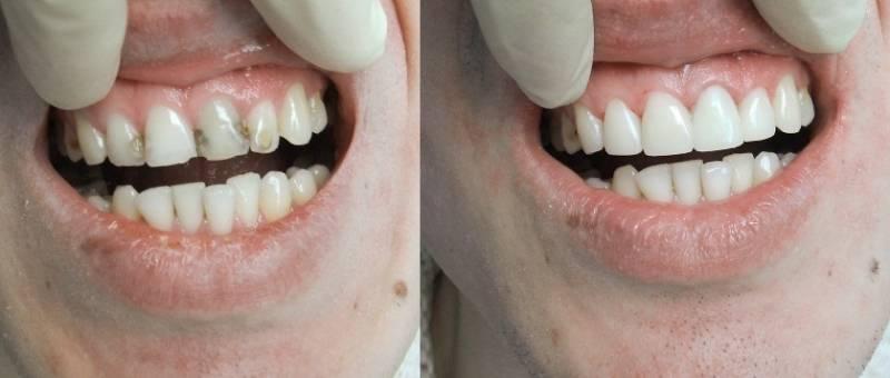 Реставрация зубов - фото до и после