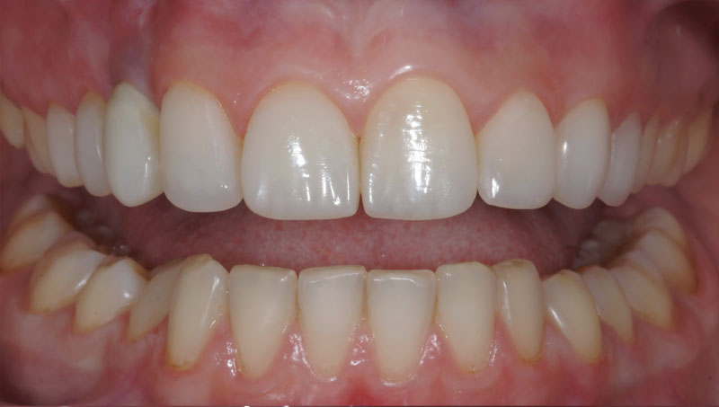 Художественная реставрация зуба минусы