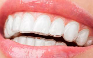 Прозрачные ретейнеры на зубах