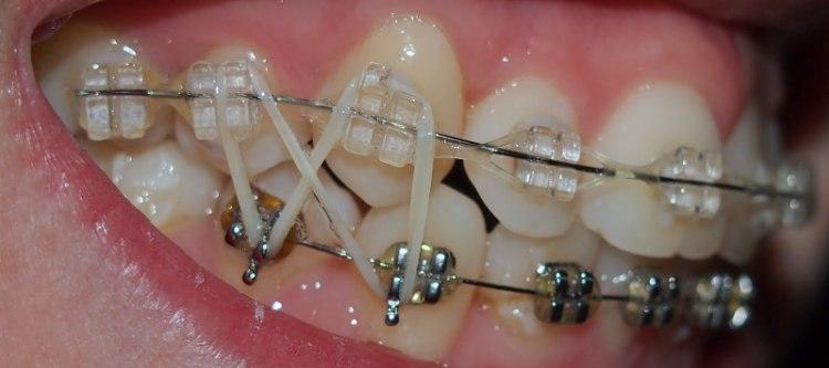 Тяги для брекетов: зачем нужны резинки и эластики на зубах, их виды, фото и видео
