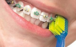 Чистка зубов щеткой для брекетов