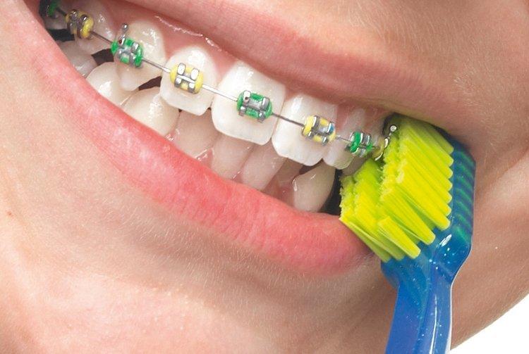 Какие зубные щетки купить для ухода за брекетами?