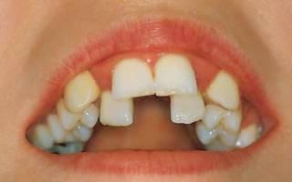 Сильное искривление зубов