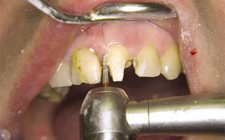 Сверление зубов