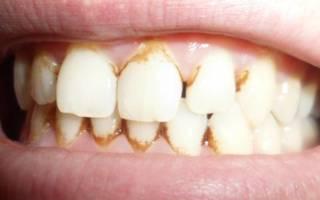Топ-15 лучших зубных паст от зубного камня