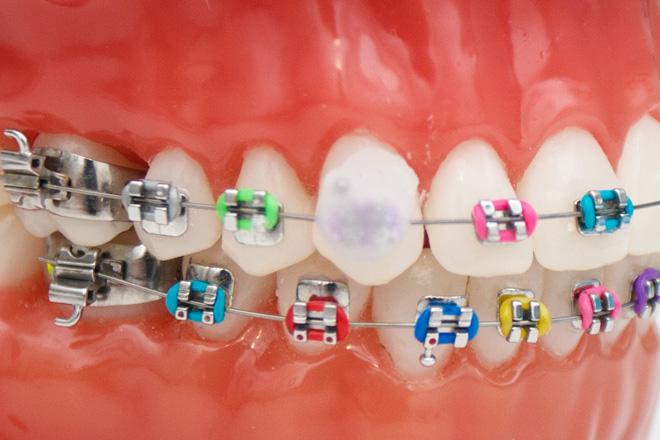 Как пользоваться ортодонтическим воском для брекетов с целью защиты зубов и для адаптации