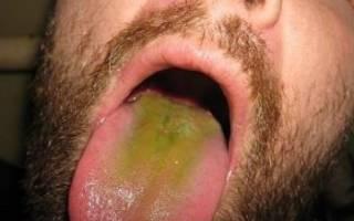 Зеленый язык у взрослого человека