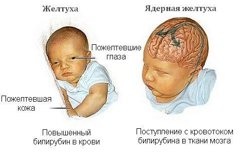 Желтушка новорожденного