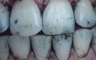 Черные зубы после активированного угля