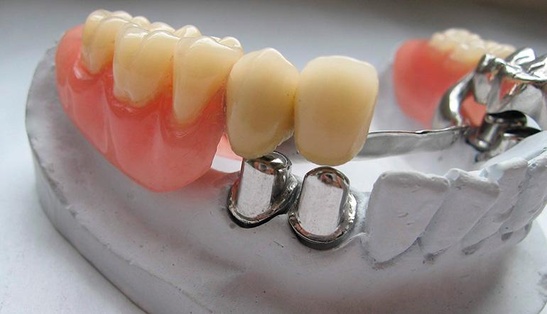 Из какого материала делают зубные протезы и какой лучше выбрать?