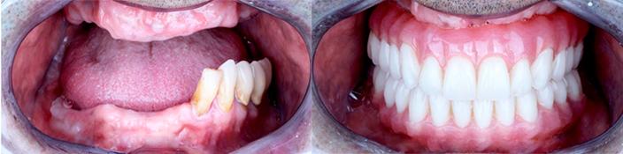 До и после имплантации зубов