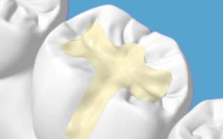 Пломба на жевательном зубе