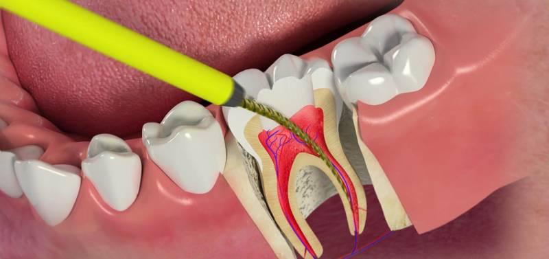 Процесс депульпирования зуба