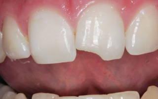 Что делать, если откололся кусочек зуба?