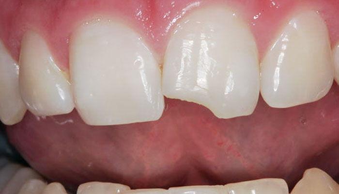 Скол переднего зуба