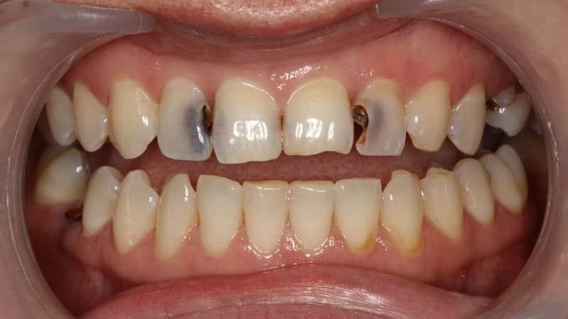 Кариес передних зубов как бороться