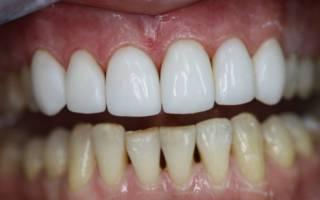 Белая эмаль зубов