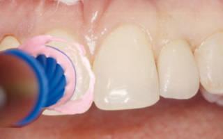 Чистка зубов щеточкой