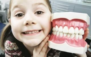 Девочка и муляж челюсти
