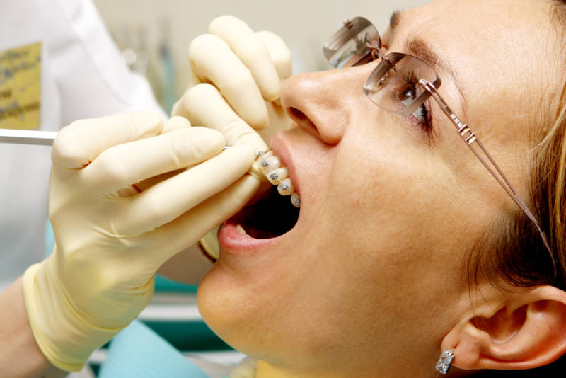 Девушка с брекетами у ортодонта