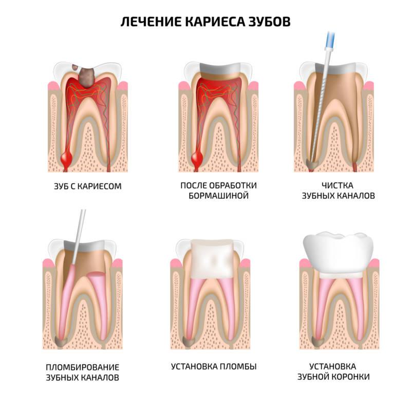 Этапы лечения кариеса