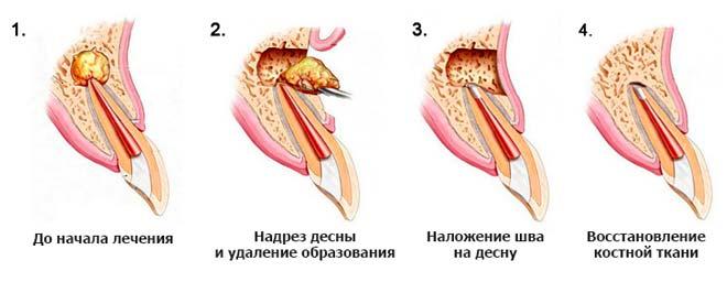 Цистэктомия гранулемы
