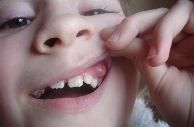Гнойная шишка у ребенка