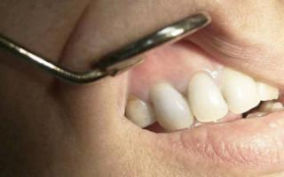 Методы диагностики и лечения гранулемы зуба