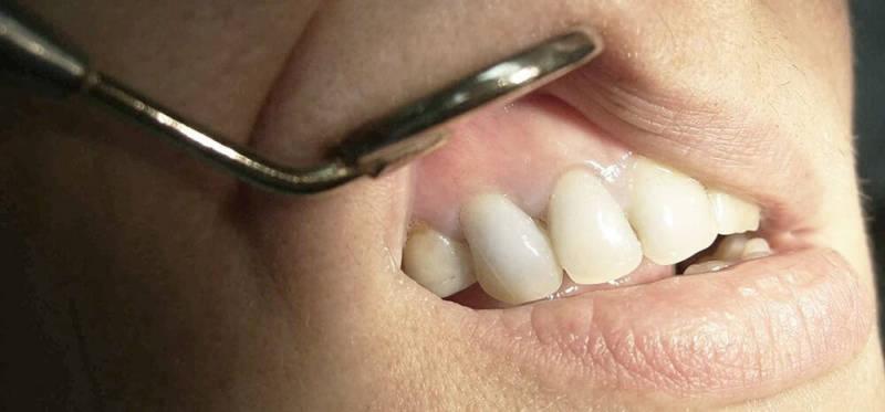 Гранулема в стоматологии