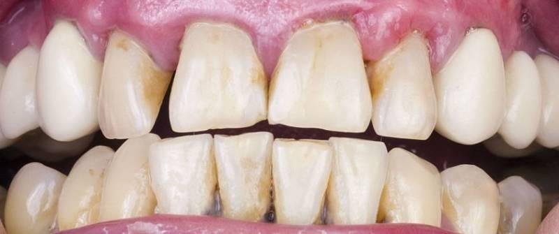 Эрозия эмали зубов - причины и лечение