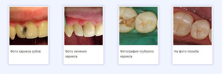 На фото примеры лечения кариеса