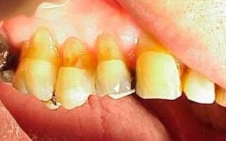 Клиновидный эффект - желтые зубы