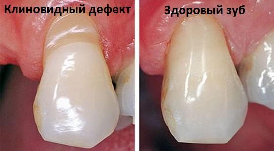 Клиновидный дефект и здоровые зубы