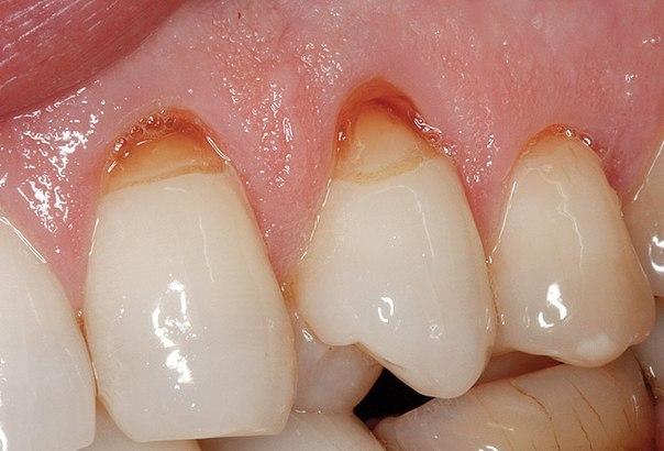 Причины возникновения клиновидного дефекта зубов, методы лечения и профилактики, советы стоматологов