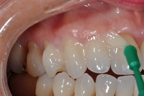 Лечение зубов фтором