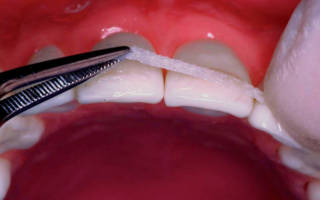 Лента Либбон на зубы