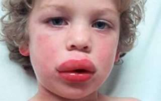 Мальчик с опухшей губой