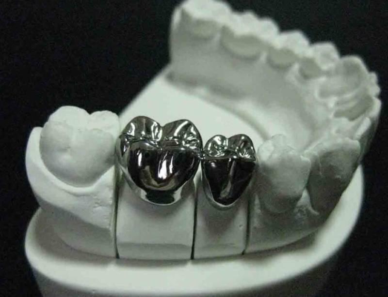 Металлы для изготовления зубных коронок