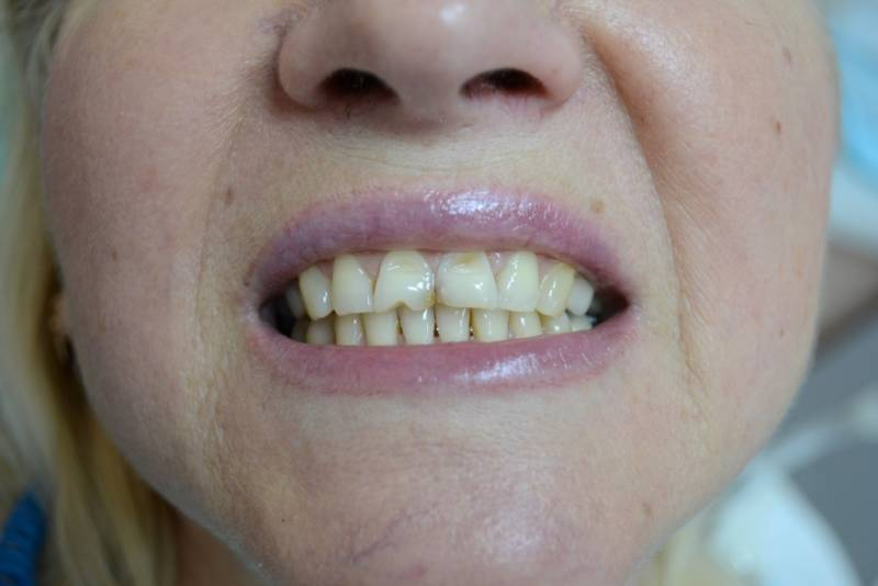 На передних зубах