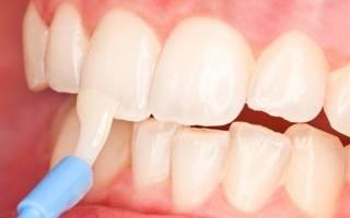 Нанесение состава на зубы