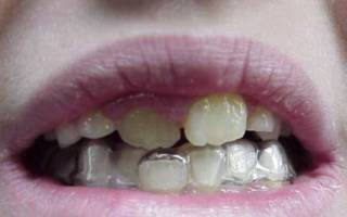 Неровные зубы