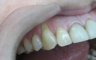 Оголение шейки зуба