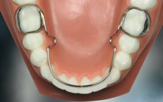 Охватывающие ретейнеры на зубы