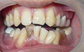 Оклюзия зубов