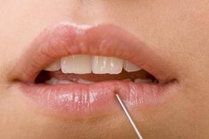 Онемение губ